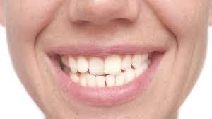 آیا دندان کج من به وسیله ارتودنسی صاف می شود یا نه؟