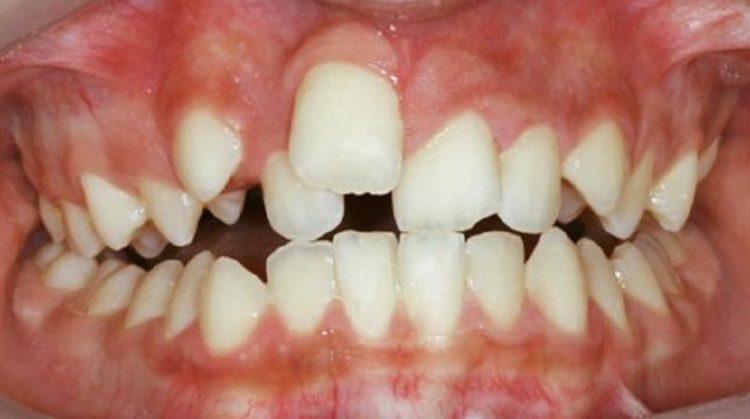 دندان پیچ خورده و درمان ارتودنسی