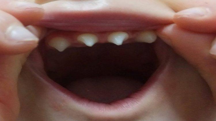 دیسپلازی دندانی و درمان ارتودنسی
