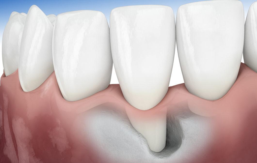 از دست دادن استخوان نگهدارنده دندان