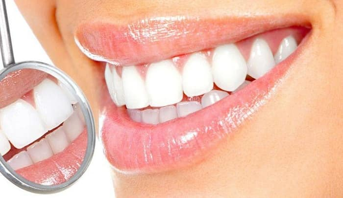 کامپوزیت دندان چیست؟ درباره ونیر کامپوزیت چه میدانید؟