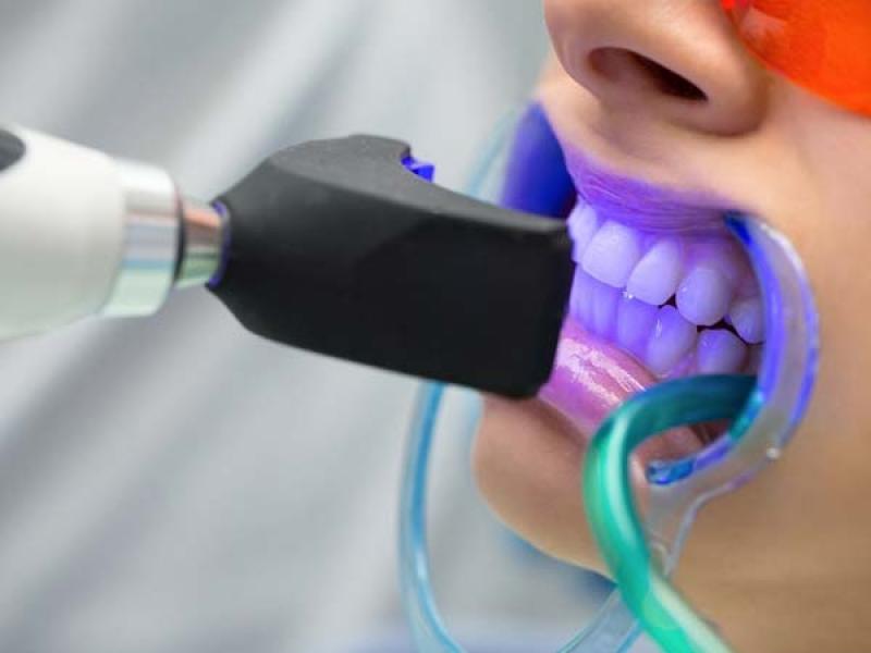 بلیچینگ دندان چیست و هزینه آن چه قدر است ؟
