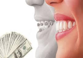 هزینه ارتودنسی دندان چقدر است؟ (محدوده قیمت ارتودنسی)