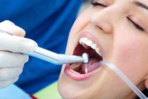 هزینه پر کردن دندان در سال 99 چقدر است؟