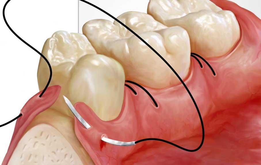 جراحی لثه چیست و چرا انجام میشود؟