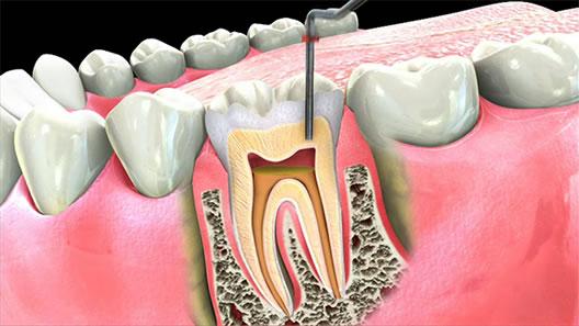 عصب کشی دندان چیست و چرا آن را انجام میدهند؟