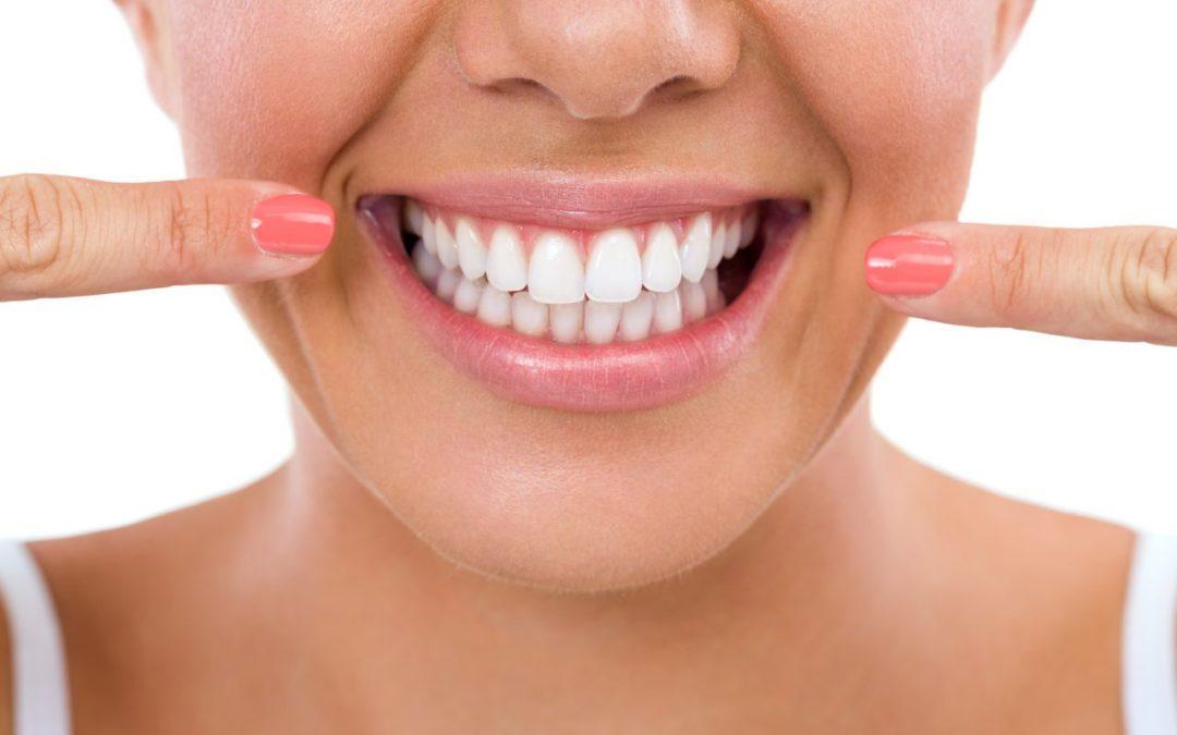 مراقبت از لمینت دندان: اصول نگهداری و مراقبت از لمینتها