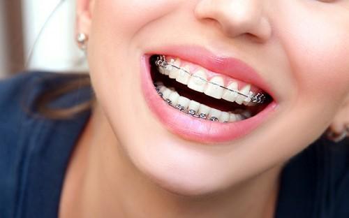 اردتودنسی دو دندان جلو