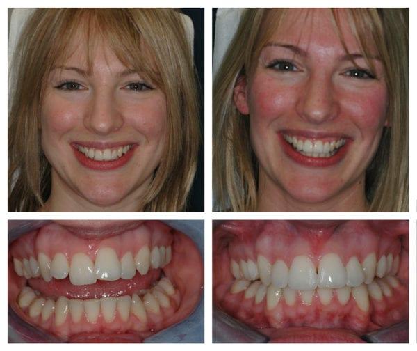 ارتودنسی دو دندان جلو