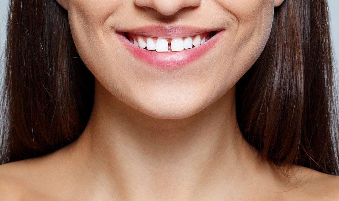 علت ایجاد فاصله بین دندان ها چیست و چگونه بسته میشود؟