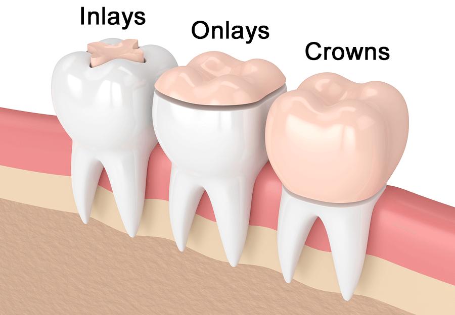 اینله و انله دندان چیست؟