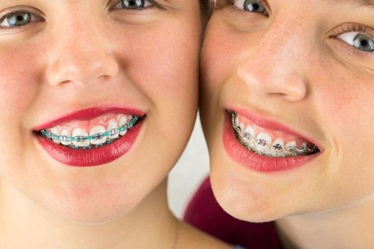 ارتودنسی دندان تا چه سنی جواب میدهد