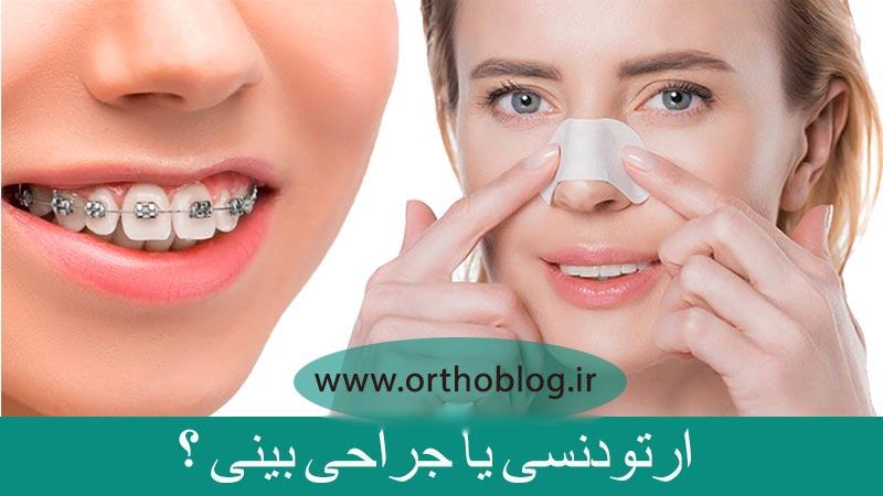 ارتودنسی و جراحی بینی
