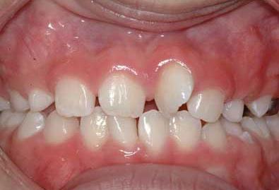 ارتودنسی دندان کج چیست و عوامل کج کننده دندان ها کدامند؟
