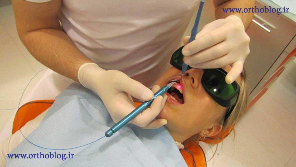 ارتودنسی دندان با لیزر