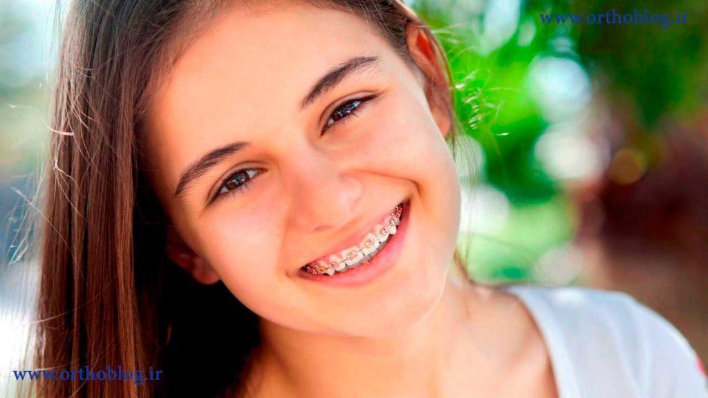 نتیجه ارتودنسی دندان