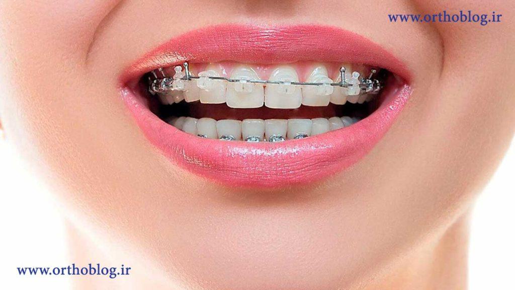 ارتودنسی دندان بعد از ترمیم