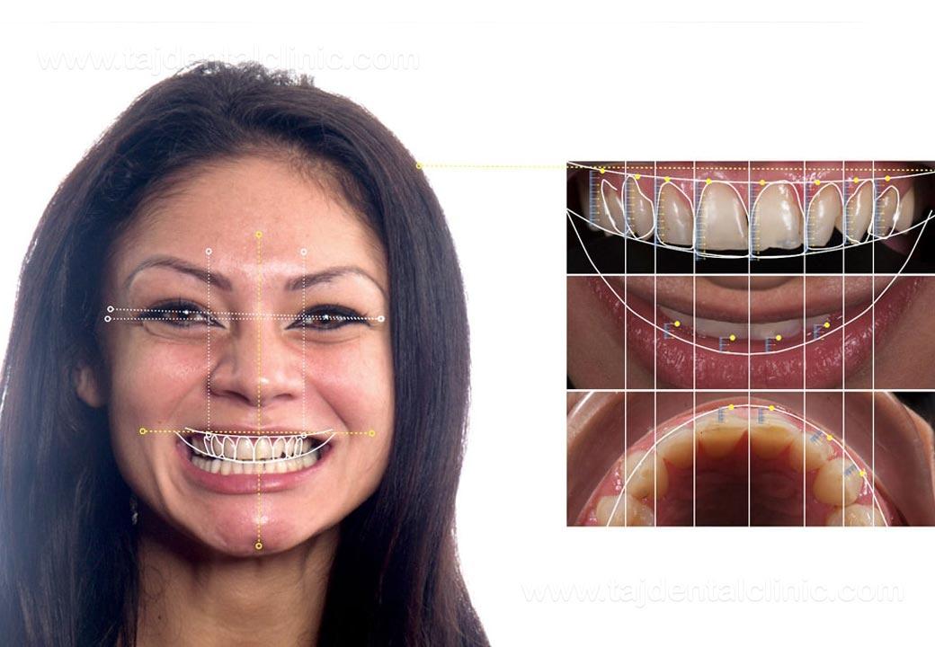 نرمافزار طراحی لبخند