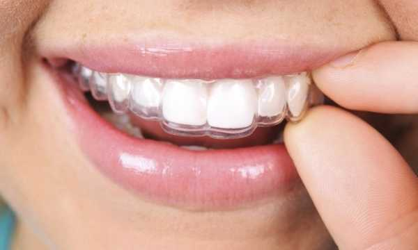 ارتودنسی دندان ژله ای