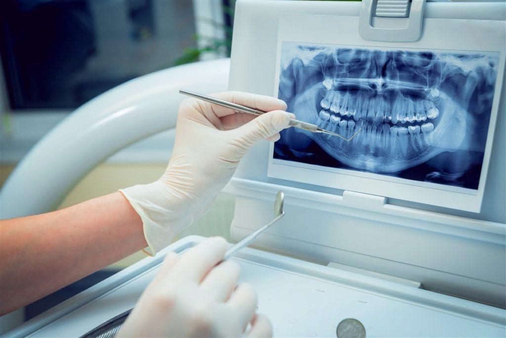 ارتودنسی دندان چند مرحله دارد-1