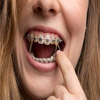 ارتودنسی چند دندان به چه نحوی انجام می شود؟