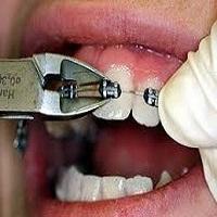 ارتودنسی دندان چقدر طول میکشه