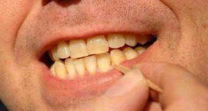 ارتودنسی فاصله دندان جلو