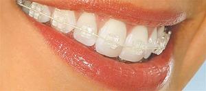 ارتودنسی طرح لبخند-2