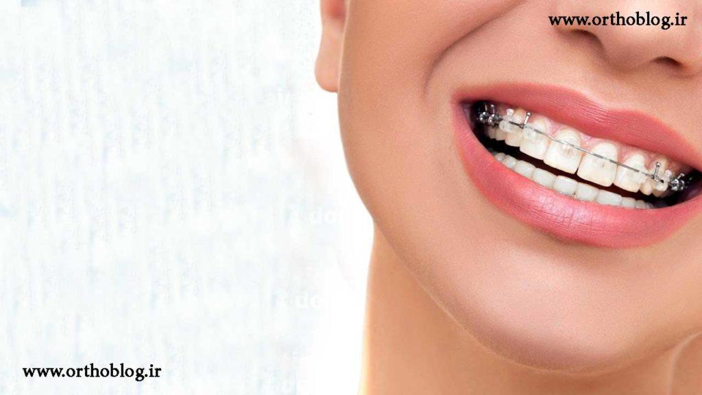 ارتودنسی دندان برای طرح لبخند