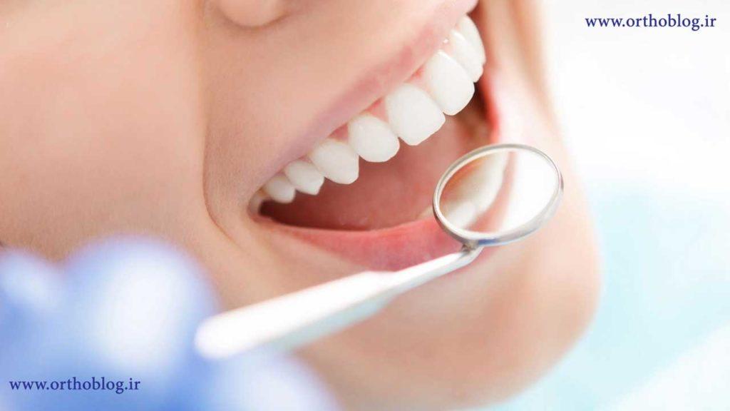 معاینه ارتودنسی دندان