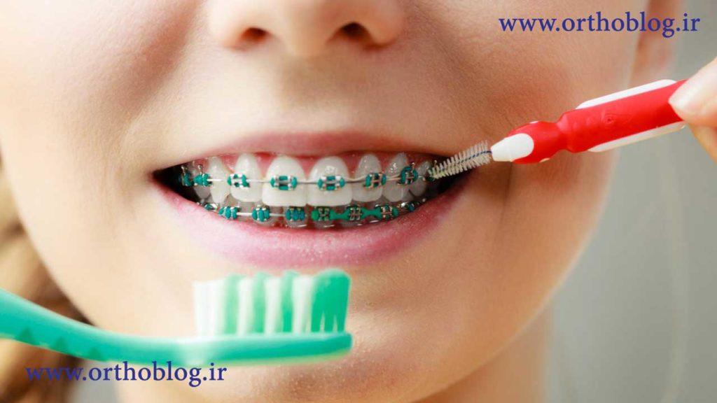 انجام ارتودنسی دندان برای یک کودک